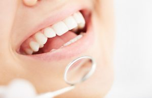close-up of a healthy smile