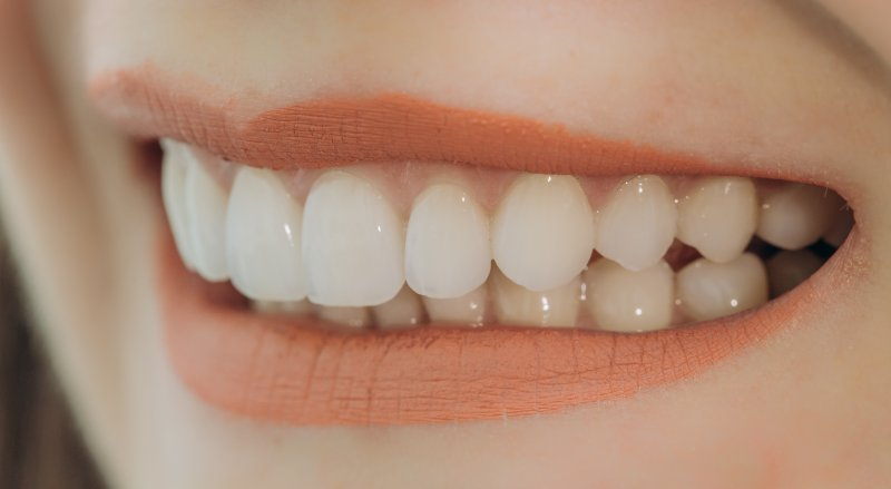 Woman with porcelain veneers in Lovell